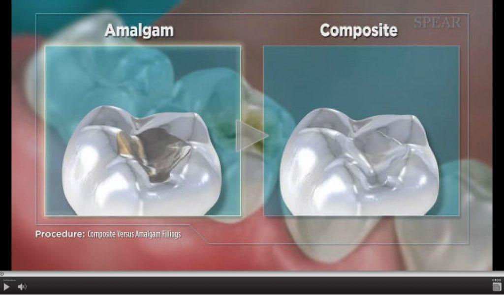 composite-versus-amalgam-filling-1-1024x600