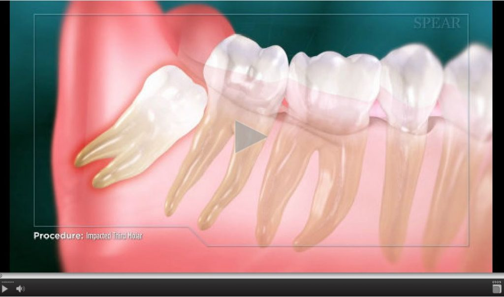 impacted-third-molar-1024x603