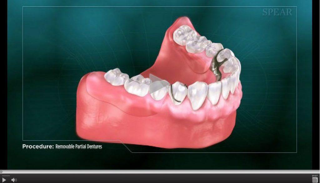 removable-partial-dentures-1024×598