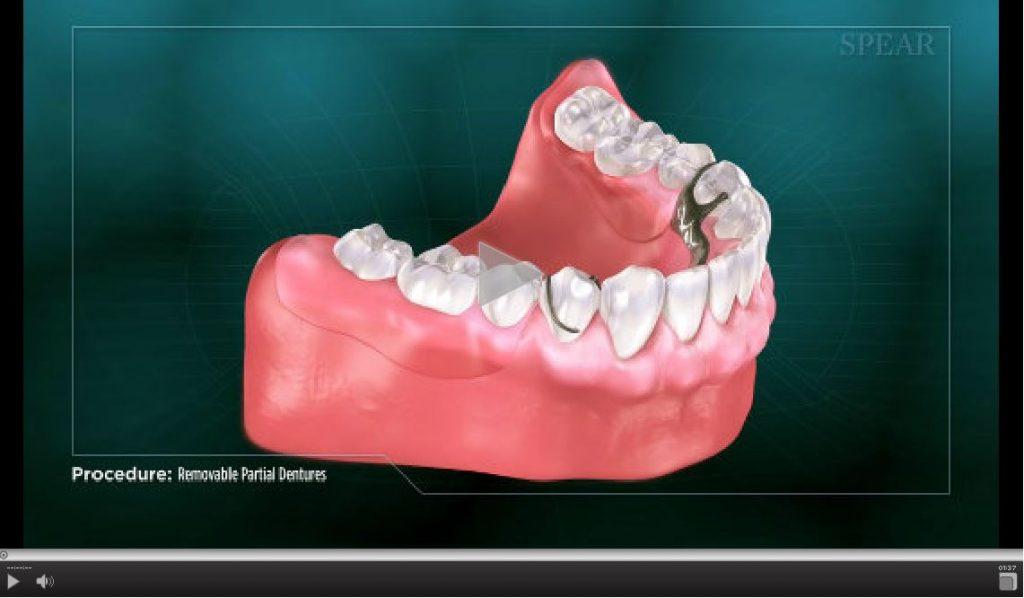 removable-partial-dentures-1024x598