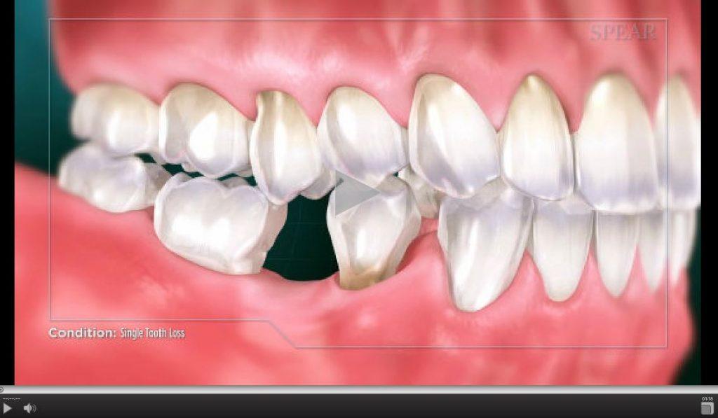 single-tooth-loss-1024x597